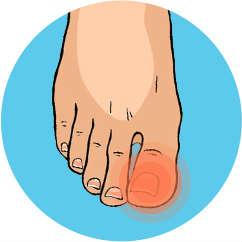 Opracowanie paznokci zmienionych chorobowo